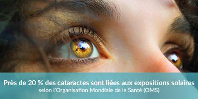 Cataractes liées aux expositiosn solaires